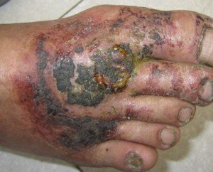牛皮癣患者要避免皮肤过敏